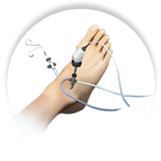 Arthroscopic Ankle Surgery